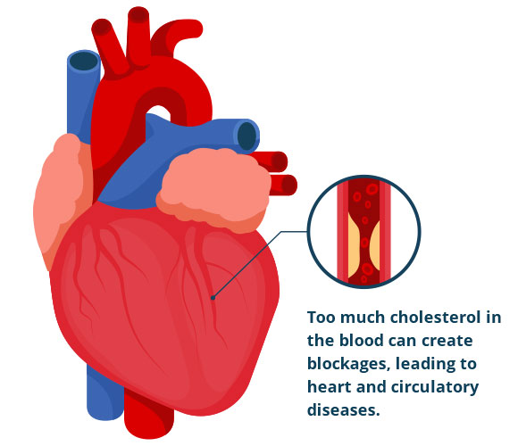 heart-diagram